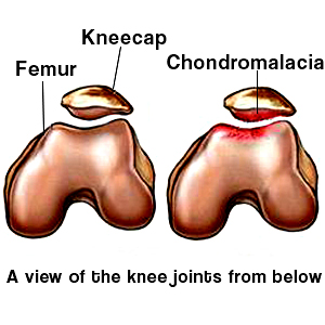 activities to improve and prevent chondromalacia patella |, Skeleton